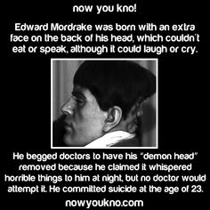 Now You Know about Edward Mordrake, the man born with an extra face on the back of his head. (Source)
