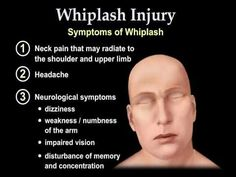Whiplash Injury Animation - Everything You Need to Know  - Dr. Nabil Ebraheim, M.D.