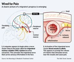 Link to a great article. Research showing biology of the pain and current attempts to block the chemical before migraine begins.