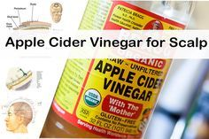 Here is the list of best home remedies for the treatment of Dry scalp, Itchy scalp, flaky scalp, psoriasis and dandruff using Apple cider vinegar.