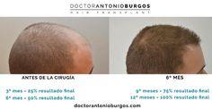 resultados FUE Dr Antonio Burgos