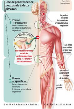 La maladie de Charcot Health And Wellness, Health Fitness, Medical Humor, Neurology, Anatomy And Physiology, Health Benefits, Healthy Life, Psychology, Nutrition
