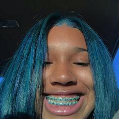 braces😍 tag a brace face Cute Girls With Braces, Cute Braces Colors, Braces Smile, Teeth Braces, Green Braces, Black Braces, Maquillage Kylie Jenner, Braces Tips, Grills Teeth