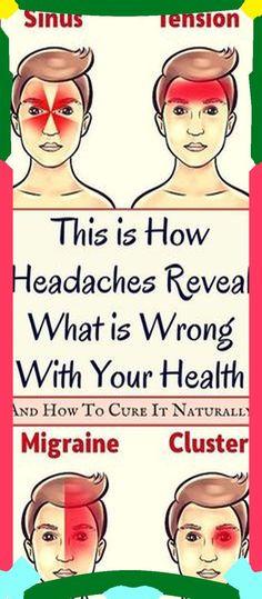 Tmj Headache, Headache Remedies, Herbal Remedies, Health Remedies, Home Remedies, Natural Remedies, Headache Symptoms, Migraine Relief, Massage