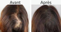 Vos cheveux révèlent votre état de santé, et une belle chevelure requiert de l'attention et des soins. Voici un masque à l'huile d'olive, miel et cannelle pour prévenir la chute de cheveux.