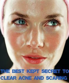 The Best Kept Secret to Clear Acne and Scaring for Good. It really works, you will be amazed. Trust me...Mint of My Life