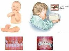 The most common cause of tooth decay for infants and toddlers is a syndrome known as baby bottle tooth decay. When a child drinks from a bottle for long periods of time it allows for teeth to bathe in a sugary liquid, setting the stage for bacteria buildup and #tooth decay. In order to prevent this, it is helpful to teach a child to use a cup as soon as possible, about one year of age. #Dentist #Hygienist
