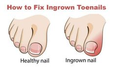 Watch This Video Ambrosial Home Remedies Swollen Feet Ideas. Inconceivable Home Remedies Swollen Feet Ideas. Ingrown Hair Remedies, Ingrown Hair Removal, Ingrown Nail, Prevent Ingrown Toe Nails, Foot Remedies, Natural Remedies, Acne Remedies, Homeopathic Remedies, Health Remedies