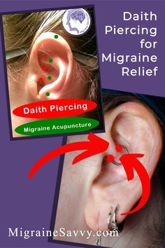 There is little scientific evidence that daith piercing for migraine relief works as a reliable and effective treatment for prevention. Decide for yourself if this is all hype, or if there's hope @migrainesavvy #daith #piercing #headaches #migraines Piercing For Migraine Relief, Daith Piercing Migraine, Piercings, Migraine Pressure Points, Migraine Diary, How To Get Rid, How To Find Out, Migraine Attack, The Cure