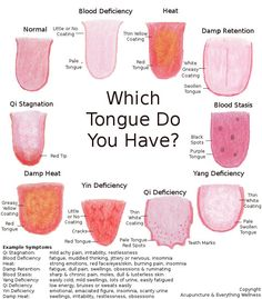 Tongues & What Acupuncturists Can Tell About Them