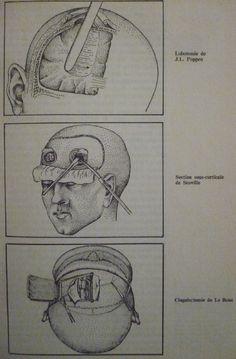 Lobotomie de Poppen, Section sous-corticale de Scoville, Cingulectomie de Le Beau (A. Jaubert, 1975, p.29)