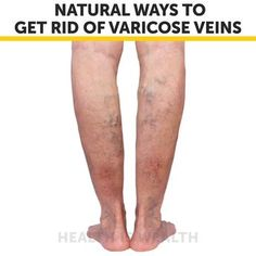 Natural Home Remedies Natural Ways To Get Rid Of Varicose Veins Home Health Remedies, Natural Health Remedies, Natural Cures, Natural Healing, Varicose Vein Remedy, Varicose Veins Treatment, Health And Beauty Tips, Health Tips, Hygiene