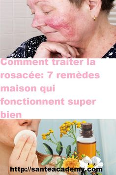 Comment traiter la rosacée: 7 remèdes maison qui fonctionnent super bien Cancer, Cholesterol, Stuff Stuff, Health Remedies, Home Remedies, Beauty Women
