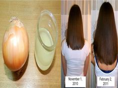 10 Hausmittel für natürlich volles Haar - Zwiebelsaft vorher nachher