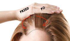 Beauty Make Up, Diy Beauty, Beauty Hacks, Diy Spa, Hair Loss, Short Hair Cuts, Makeup Tips, Health And Beauty, Hair Care