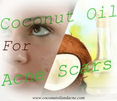 Coconut Oil For Acne Scars - Coconut Oil And Acne www.coconutoilandacne.com