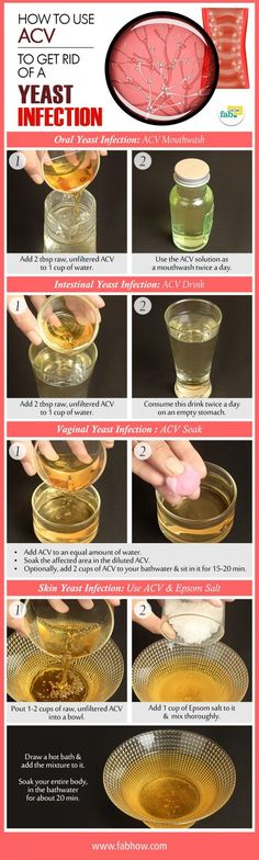 How to Use ACV to Get Rid of a Yeast Infection