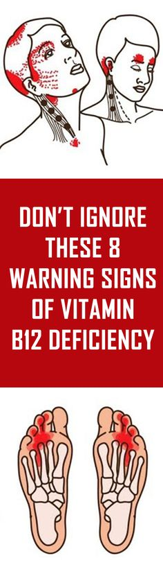 Don't Ignore These 8 Warning Signs Of Vitamin B12 Deficiency