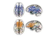 Differences in How Men and Women Think Are Hard-Wired - Recent Studies Raise the Possibility That Male Brains Are Wired for Focus, Female Bra...