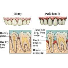 Herbal Remedies For Gum Diseases