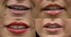 """Are you interested in getting your lips filled but were always scared of the dreaded """"duck lips?!"""" At the office of Dr. Dayan, we strive to show that natural beautification is achievable! If you're interested in learning more about receiving lip fillers call 312-335-2070."""