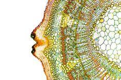 Plant Breathing Pore, Light Micrograph Photograph