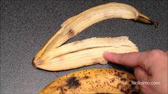 Clínica IOS: Bananas