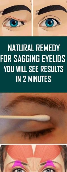 Sagging Skin Remedies Natural Remedy For Sagging Eyelids You Will See Results In 2 Minutes! Natural Remedies For Allergies, Natural Headache Remedies, Natural Remedies For Anxiety, Organic Skin Care, Natural Skin Care, Natural Face, Organic Beauty, Organic Makeup, Natural Beauty