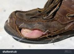 A Worn Shoe With Adult Male Toe Sticking Out Through A ...