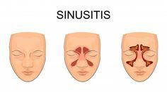 Trucos para sinusitis