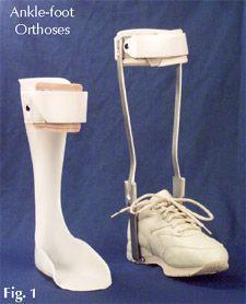 Ankle- Foot Orthosis AFO