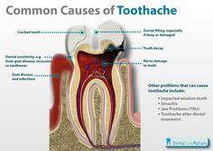 Common causes of toothache #toothache www.dallasstreetdental.com https://www.facebook.com/DallasStreetDental