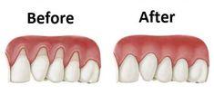 11 Remedies meest effectieve Home For terugtrekkend tandvlees