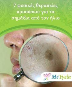 7 φυσικές θεραπείες προσώπου για τα σημάδια από τον ήλιο Μην ξεχάσετε να  εφαρμόσετε αυτές τις a8a3247968b