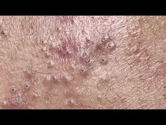 Blackheads On Nose, Pimples, Skin Disease Pictures, Whitehead Removal, Pimple Popping, Blackhead Remover, Woodworking Plans, Spa, Youtube