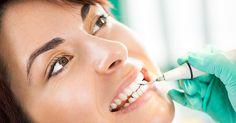 Lohnt sich eine professionelle Zahnreinigung wirklich? - http://g-m.link/e6