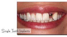 #topdentalclinicsinpunjab #bestdentalcareinjalandhar #dentalhospitalscanada #dentalsurgeryindia #bestdentalclinicinjalandhar  www.drguptasdentalcareindia.com Cont:91-9023444802
