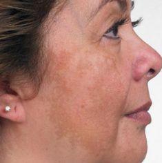 Melasma Cure: Permanent Natural Melasma Treatments