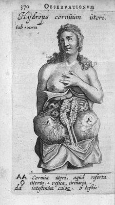 TULP, Nicolaus Ouvrage : Observationes medicae Edition : Amsterdam : L. Elgevir, 1652 Cote : 039074A Empl. de l'image : Tab. XVII Technique : Gravure - Burin