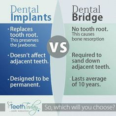 Dental implants vs. dental bridge... So which will you choose?