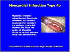 Third universal definition of Myocardial Infarction : Type Cardiovascular Nursing, Myocardial Infarction, Cardiac Nursing, Diagram Chart, Acute Care, Circulatory System, Nurse Stuff, Cardiology, Student Studying
