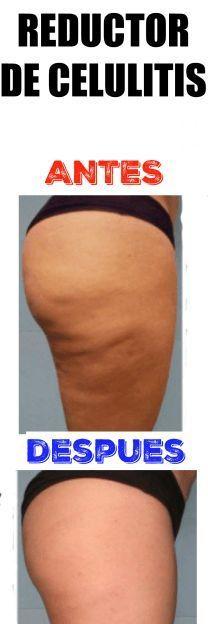Reducir La Celulitis