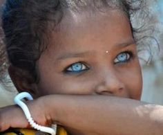 """African Girl with sapphire eyes~The word """"albinism"""" refers to a group of inherited conditions. People with albinism have little or no pigment in their eyes, skin, or hair. They have inherited altered genes that do not make the usual amounts of a pigment called melanin. One person in 17,000 in the U.S.A. has some type of albinism. Albinism affects people from all races. Most children with albinism are born to parents who have normal hair and eye color for their ethnic backgrounds."""