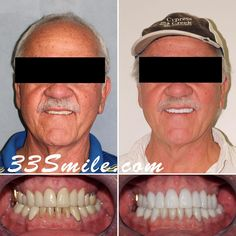 Happy Monday! We are loving this result Our patient first came to us wanting to restore just his lower teeth. He loved the result so much he decided to do his upper teeth as well! A total of 21 teeth #drjamsmiles #33Smile . . All photos and video of patients are of our actual patients. All media is the of Cosmetic Dental Associates. Any use of media contained herein is prohibited without written consent. . . #satx #satxdentist #dentistry #goals #smile #teeth #instagoals #transformationtuesday Insta Goals, Dental Cosmetics, Smile Teeth, Dental Procedures, Cosmetic Dentistry, Transformation Tuesday, Beautiful Smile, Happy Monday, Restore
