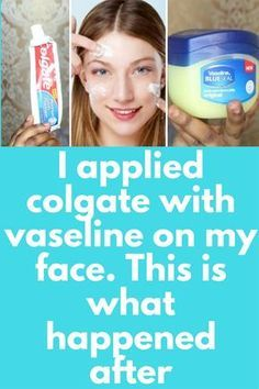 I applied colgate with vaseline on my face. This is what happened after This is a very simple remedy, for this you will need just 2 things Toothpaste + Vaseline petroleum jelly What to do: Use simple white toothpaste, not gel based or any flavoured toothpaste Take some toothpaste in a bowl. Amount should be same as much you use on your brush. Add same amount of vaseline …