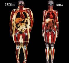 These two pictures show body scans of two women approximately the same age and height. The one on the left weighs 113 kg (250 lbs), while the one on the right weighs 54 kg (120 lbs). Accumulated adipose tissue is not the only difference between the two; the obese woman has an enlarged heart and her lungs are somewhat restricted.  More info: http://bbc.in/14whyV6