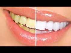 طريقة تبيض الأسنان الصفراء بالملح ..؟!!