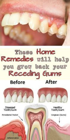 Bad breath, red or swollen gums and sore gums are all symptoms for a dental issue named gingivitis. If you don't treat this gum disease, it can lead to periodontitis. Some of the factors that can cause gum disease are: Poor oral hygiene Smoking Genetic pr Gum Health, Dental Health, Oral Health, Teeth Health, Dental Care, Health Care, Dental Hygienist, Dental Implants, Health Tips