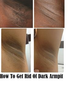 Are you scared of getting your hands up because of the dark underarms? I know it can be a source of anxiety and embarrassment. But as we try to help you with everything, what's stopping us for tryi…