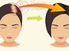 Saç dökülmesini önleyen karbonat şampuanı tarifi